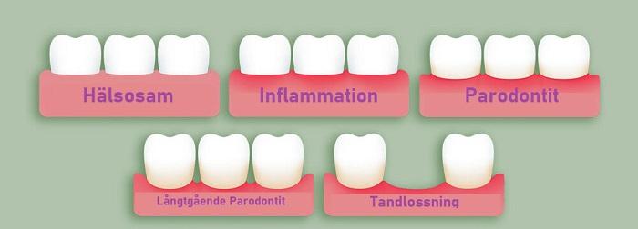 Utveckling tandlossning