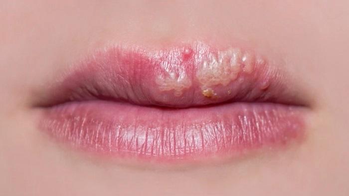 Herpes på munnen