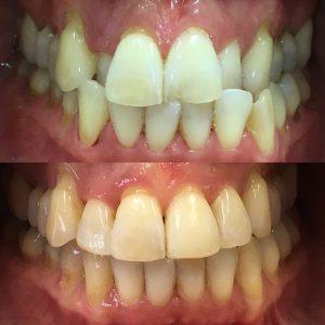 Fula tänder komplicerat bett