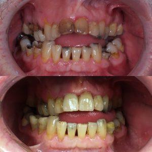 Fula tänder missfärgade
