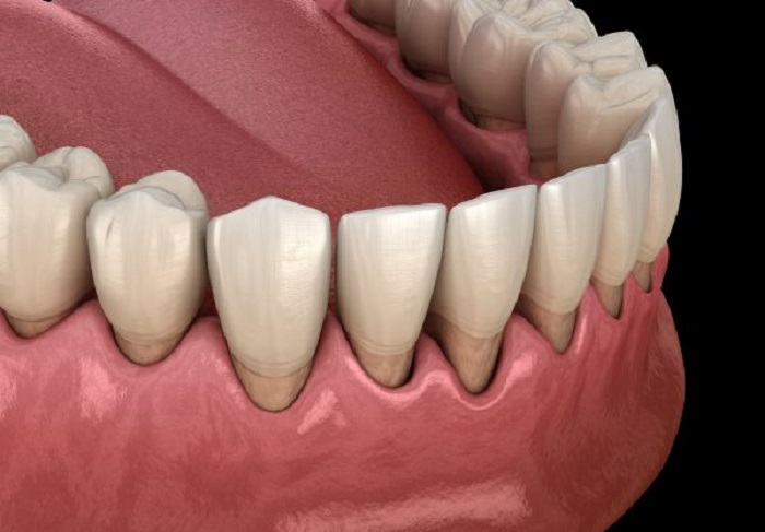 Tillbakadraget tandkött